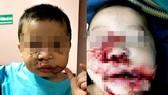 Một cháu bé được phẫu thuật tạo hình vùng mặt sau khi bị chó nuôi cắn gây thương tích nặng