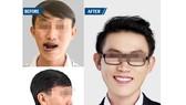 Hình ảnh bệnh nhân Ng.D.P. trước và sau phẫu thuật
