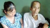 Cha ung thư, 2 con gái bị tâm thần