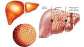 Viêm gan virus - bệnh nguy hiểm, dễ bỏ qua
