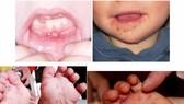 Cảnh báo dịch bệnh tay chân miệng vào mùa cao điểm