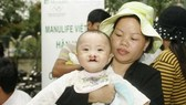Operation Smile provides free dental, facial surgery to kids