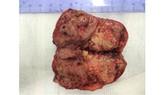 Phẫu thuật thành công bệnh nhân bị ung thư gan tái phát