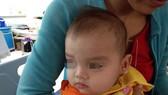 Đến nay, sức khỏe bé đã ổn định, bé được xuất viện với gương mặt lành lặn