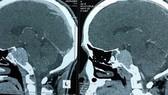 Nội soi qua mũi loại bỏ u não ở nền sọ