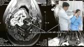 Giúp bệnh nhân bỏ u bao dây thần kinh cột sống cổ xâm lấn