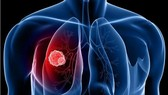 國際癌症研究中心:肺癌發病率最高。(示意圖源:互聯網)