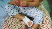 兩腳被燙傷的18月齡兒童還在治療中。(圖源:陳玉)