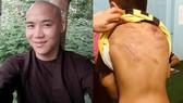 """左圖:涉嫌""""蓄意傷人""""犯罪的嫌疑人梁越德被起訴;右圖:遭毒打虐待的男童T.V.Đ.K。(圖源:Zing)"""