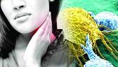Phương pháp mới điều trị và phòng ngừa di căn ung thư