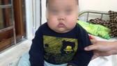 Uống thuốc có Corticoid, bé trai 17 tháng tuổi tăng 3 kg nhưng  bị suy thận cấp!