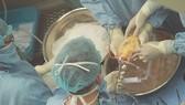 Các bác sĩ đang tiến hành ghép tim. Ảnh: Bệnh viện Trung ương Huế cung cấp