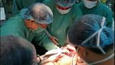 Lần đầu cắt gan bằng kỹ thuật bảo tồn ở Bệnh viện Trung ương Huế