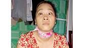Người phụ nữ nghèo bị u não, mất thị lực