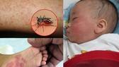 Bệnh sởi, sốt xuất huyết, tay chân miệng tại TPHCM tiếp tục gia tăng