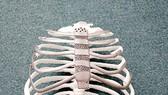 Ghép xương công nghệ in 3D