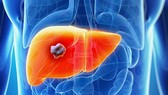 Hợp chất nhân tạo ngăn ung thư gan tái phát