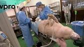 Kỹ thuật mới chống đào thải sau ghép tạng