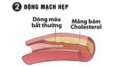 Ổn định huyết áp, tránh xa các biến chứng