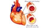 Chớ coi thường bệnh xơ vữa động mạch