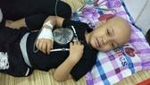 Cháu bé 5 tuổi bỗng dưng bị mù