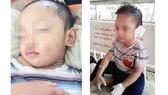 Bé trai 3 tuổi ở Bình Dương nghi bị mẹ ruột và cha dượng bạo hành