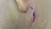Biểu hiện bên ngoài của bệnh Whitmore của một bệnh nhân nhi đang điều trị tại Bệnh viện Sản Nhi Nghệ An. Ảnh: Bệnh viện cung cấp.