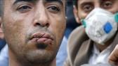 Tự khâu miệng phản đối chính sách nhập cư