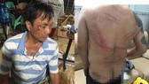 Truy xét nhóm côn đồ vào nhà dân tấn công khiến nhiều người bị thương