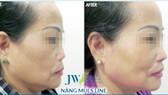 Phục hồi mũi sửa hỏng