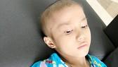 Cháu bé 10 tuổi ung thư xương