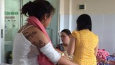 妙齡女子被潑硫酸燒傷整張背和手臂。
