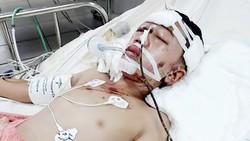 Cháu  Hoàng Ngọc Huy  bị chấn thương sọ não