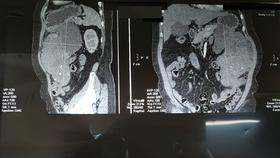 Hình chụp cắt lớp khối u của bệnh nhân N.T.L.
