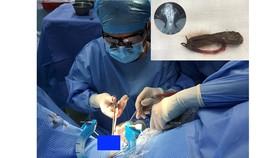 các bác sĩ đang tiến hành phẫu thuật lấy dị vật