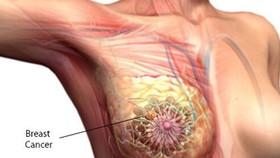 Tin vui cho các bệnh nhân ung thư vú di căn