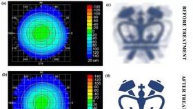 接受治療前後的角膜形態(左),以及模擬的視覺效果變化(右)。(圖源:自然-光子學)