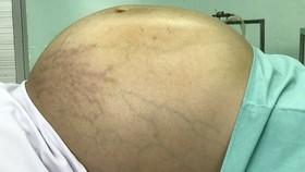 巨型卵巢腫瘤患者N.N.T.N 在手術前拍下的腹部照片。(圖源:醫院提供)