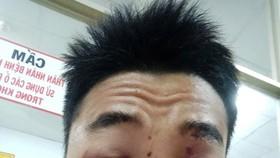 入住大水鑊醫院治療期間的阿盛臉部上的傷勢。(圖源:明山)