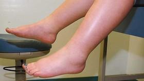 陰毒中最嚴重的就是水毒,一般由腎功能衰弱引起。(示意圖源:互聯網)