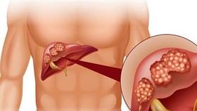 越南肝癌病例排世界前5名。(示意圖源:互聯網)