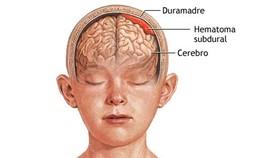 Ứng cứu với chấn thương sọ não