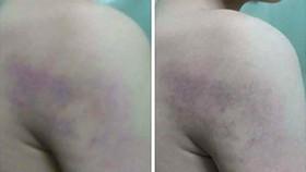 Cô giáo tại Hà Nội đánh học sinh lớp 1 bầm tím cánh tay