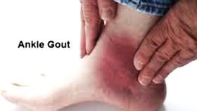 Cách mới chữa trị sỏi thận và bệnh gout