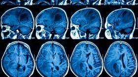 Phương pháp đột phá giúp điều trị ung thư não ác tính