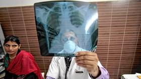 WHO: Lao vẫn là bệnh truyền nhiễm nguy hiểm nhất