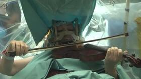 做開顱手術時竟然能拉琴