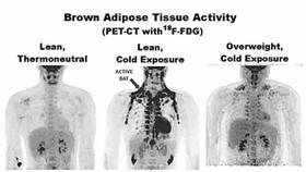 PET/CT掃描,寒冷條件下瘦的人,其肩胛骨等部位褐色脂肪更多。