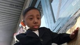 Nepalese teen becomes world's smallest man