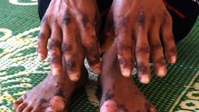12 patients cured of unknown skin disease